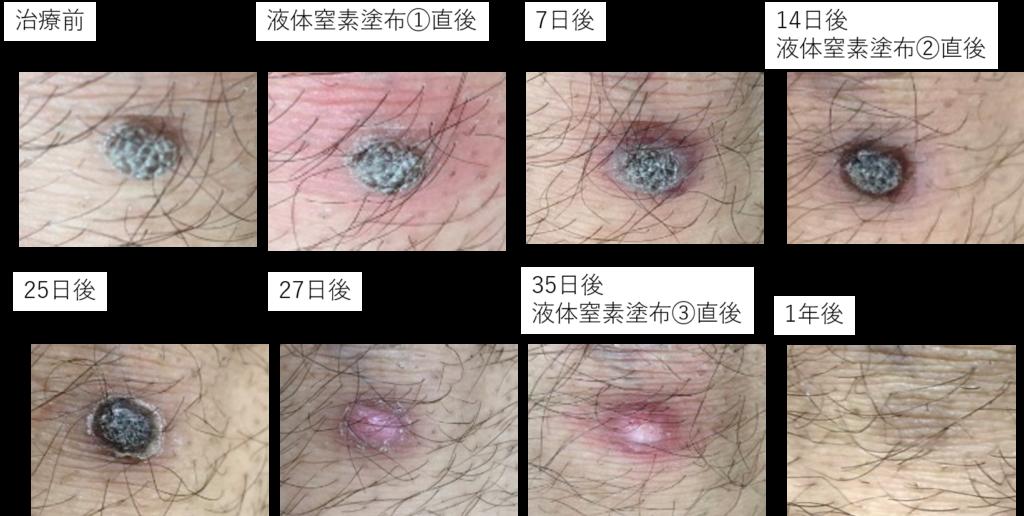 イボ 治療 液体 窒素 経過 尋常性疣贅(ウイルス性イボ)を液体窒素で治療した経過と結果!